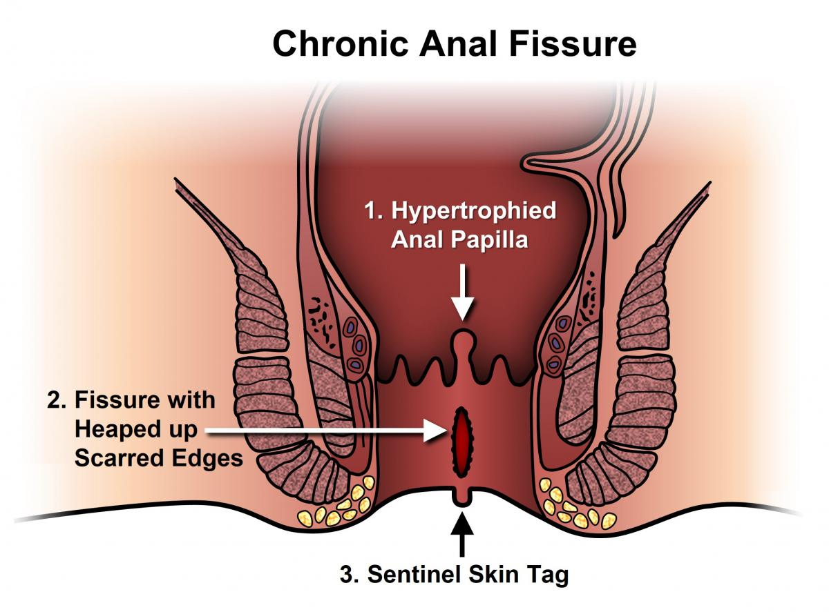 Chronic anal fissure treatment