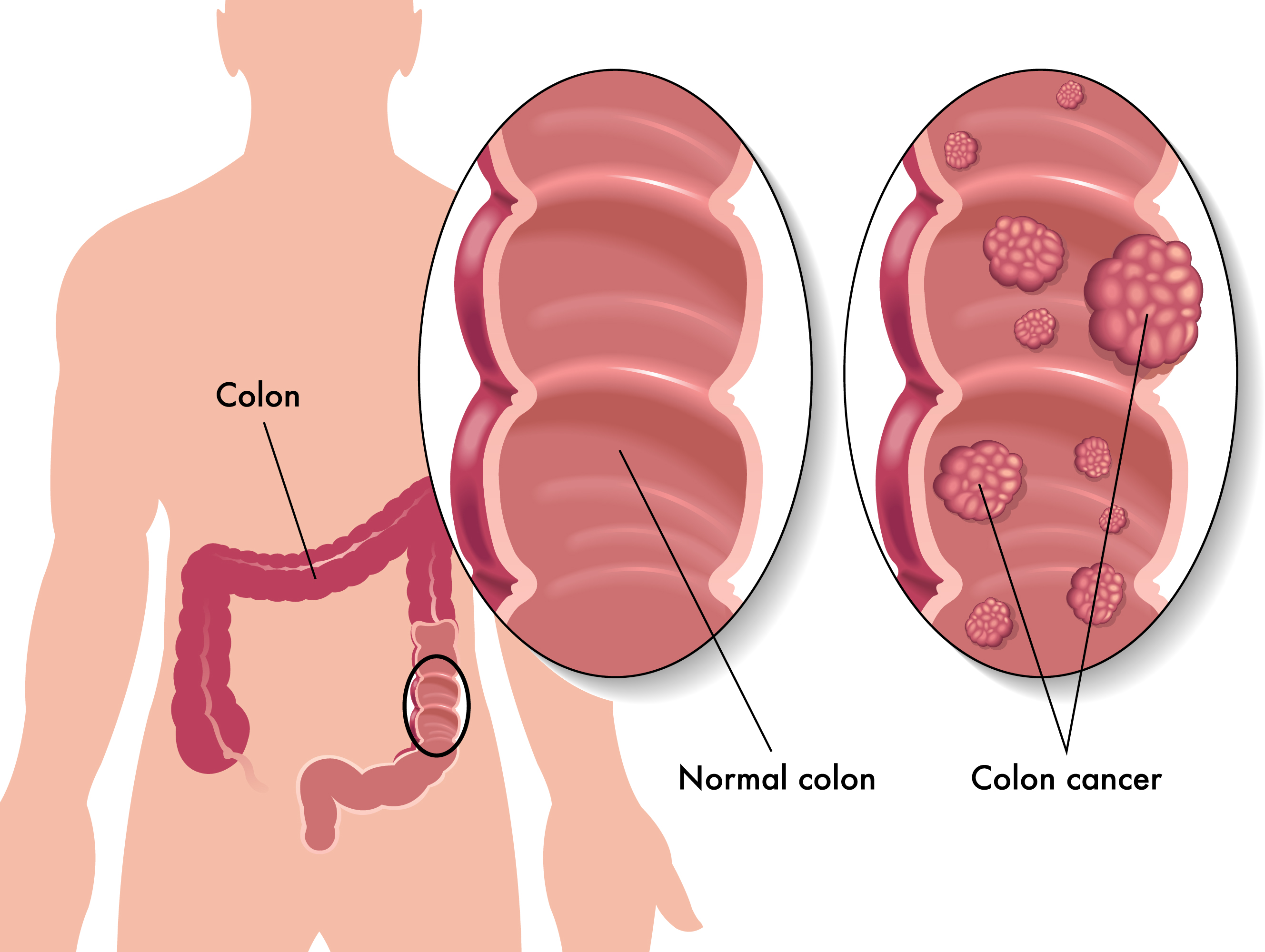 Diagnosis of colorectal cancer