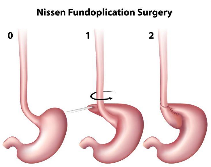 Surgical Procedure for GERD