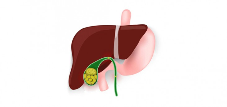 how are gallstones treated